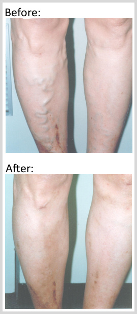 varicose-before-after